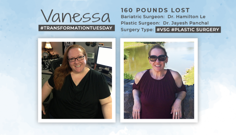 Before & After VSG and Plastic Surgery with Vanessa