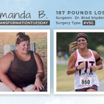 Before & After VSG with Amanda B., losing 187 pounds!