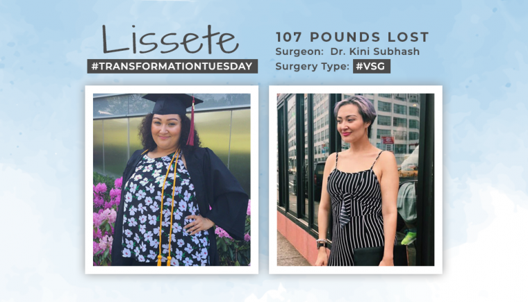 Before and After VSG with Lissete