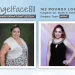 Before & After RNY with Angelface811 losing 162 pounds!