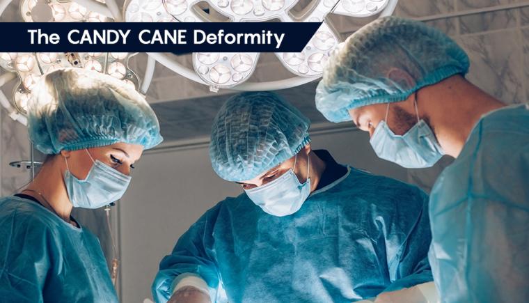 Candy Cane Deformity