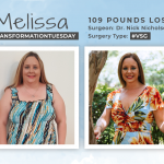 Before & After VSG with Melissa, losing 109 lbs!