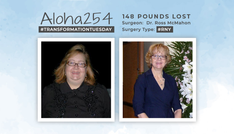 Before & After RNY with Aloha254 losing 148 pounds