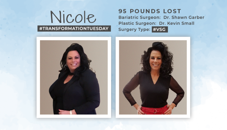 Before & After VSG & Hernia Repair with Tummy Tuck of Nicole