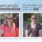 Before & After VSG with Amanda, losing 120 lbs!