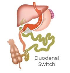 Revising to Duodenal Switch