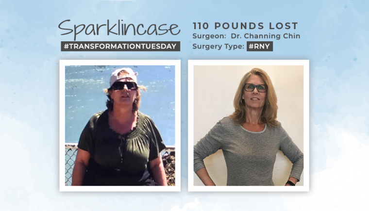 Before & After RNY with Sparklincase losing 110 pounds
