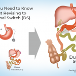 What You Need to Know About Revising to Duodenal Switch (DS)