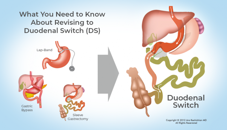 Revising to Duodenal Switch 2