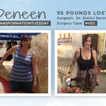Before & After VSG with Deneen, losing 95 pounds!
