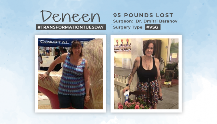 Before & After VSG with Deneen