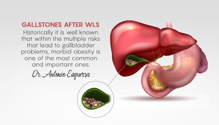 Gallstones After WLS