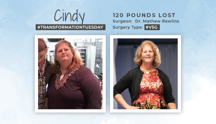 Before & After VSG with Cindy