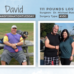 Before & After VSG with David, losing 111 pounds!