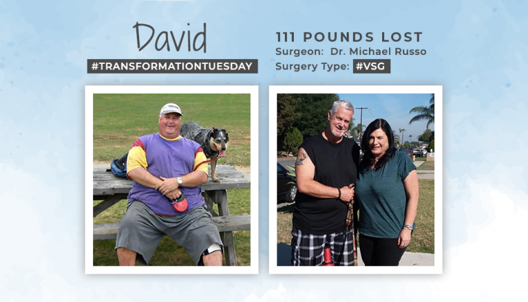 Before & After VSG with David