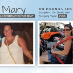 Before & After VSG with Mary, losing 88 pounds!