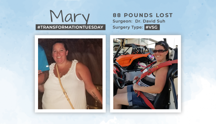 Before & After VSG with Mary 88