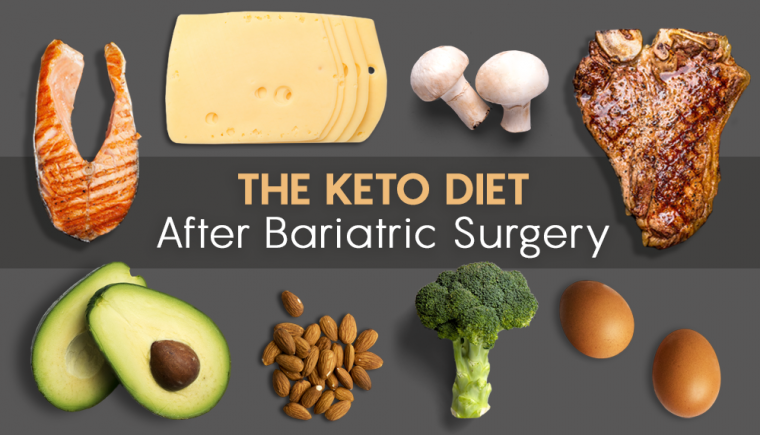 ketogenic diet after bariatric surgery