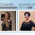 Before & After VSG with Elizabeth, losing 157 pounds!