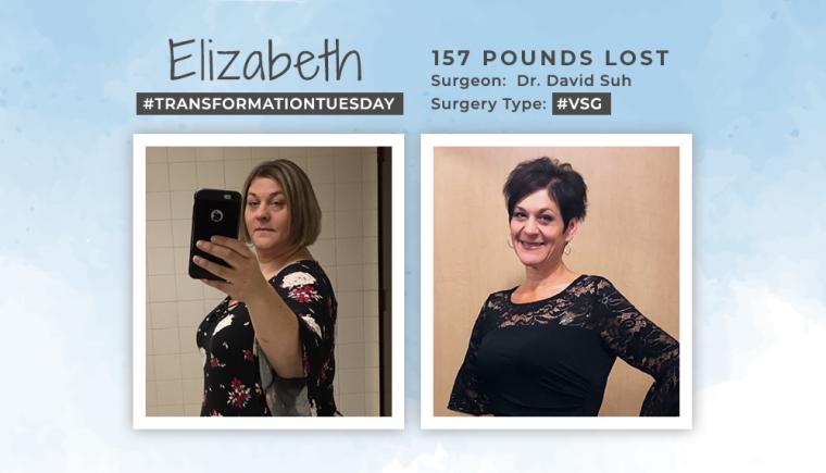 Before & After VSG with Elizabeth