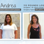 Before and After Plastic Surgery After WLS with Andrea