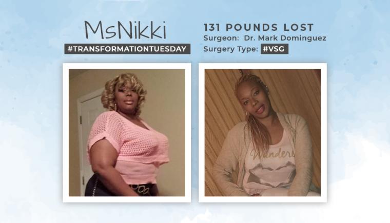 Before & After VSG of MsNikki