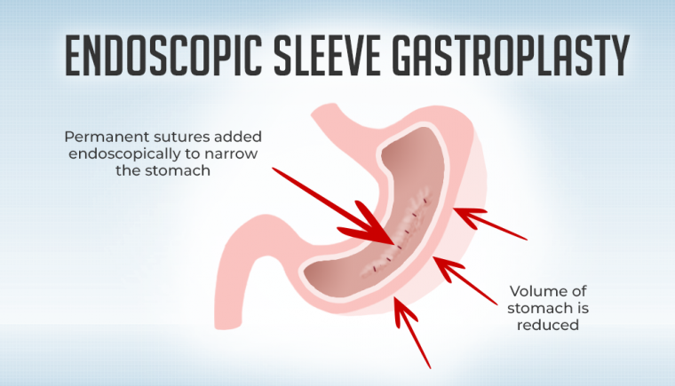 Endoscopic Sleeve Gastroplasty 1