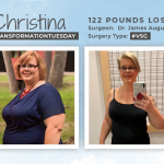Before & After VSG with Christina, losing 122 pounds!