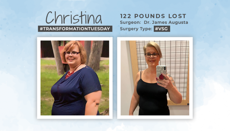 Before & After VSG with Christina