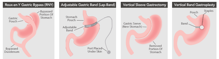 bariatric surgery revision