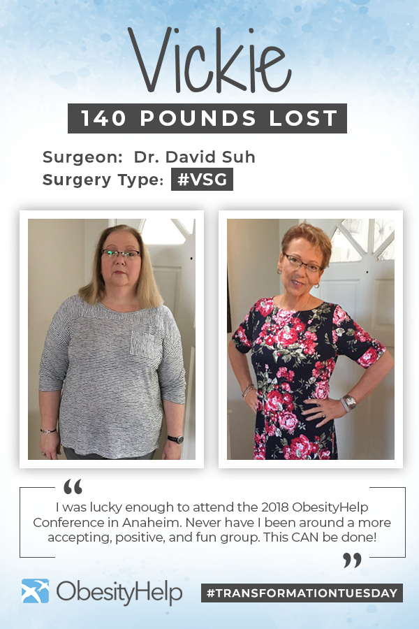 Before & After RNY with Vickie Pinterest