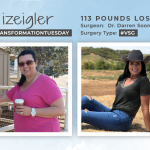 Before & After VSG with izeigler, losing 113 pounds!