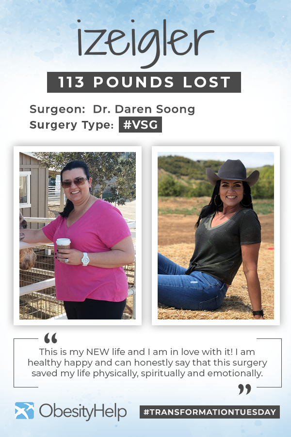 Before & After VSG with izeigler Pinterest