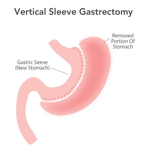 Bariatric Surgery Revision