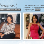 Before & After RNY with AngileeJ, losing 125 pounds!