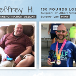 Before & After RNY with Jeffrey H., losing 130 pounds!