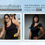 Before & After VSG with SassyItalian, losing 125 pounds!
