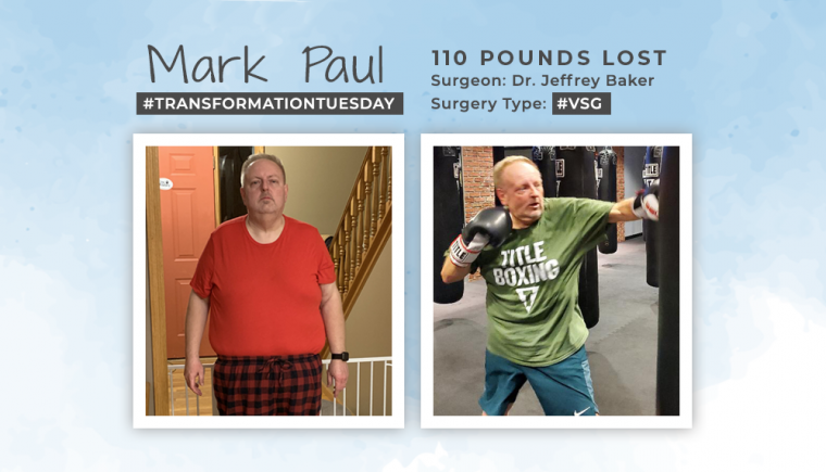 Blog Before After VSG with Mark Paul