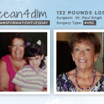 Before & After VSG with ocean4dlm, down 132 pounds!