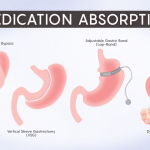 Understanding the Impact of Medication Absorption After WLS