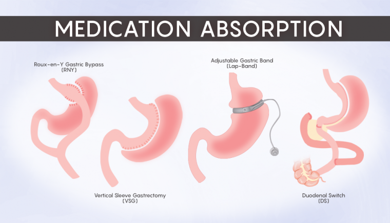 Medication Absorption 2