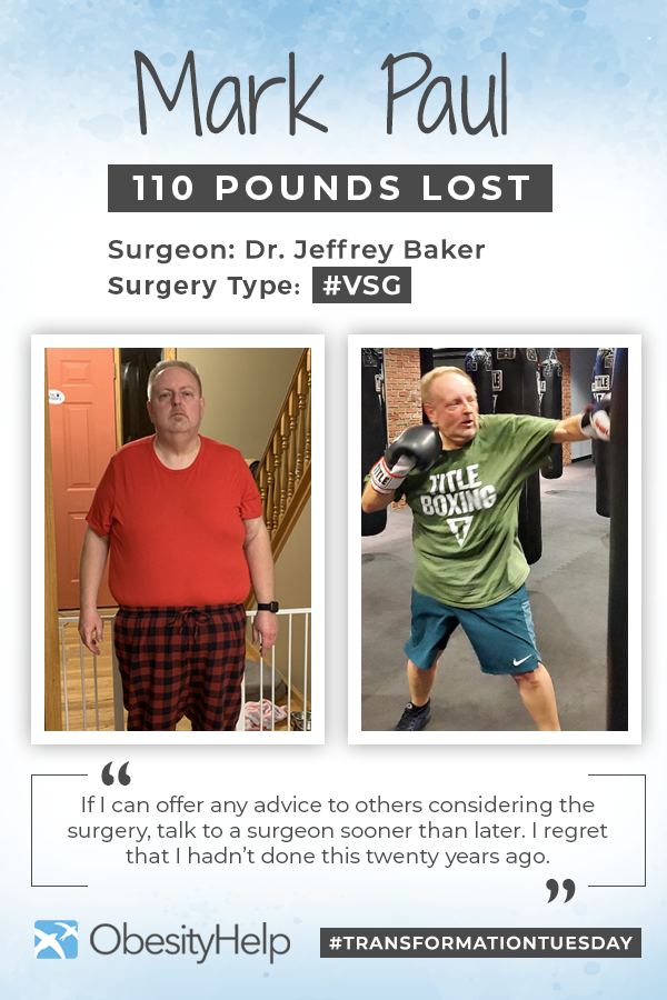 Pinterest Blog Before After VSG with Mark Paul