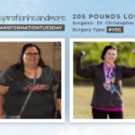 Before & After VSG with Bsinspirationhcandmore, down 205 pounds!