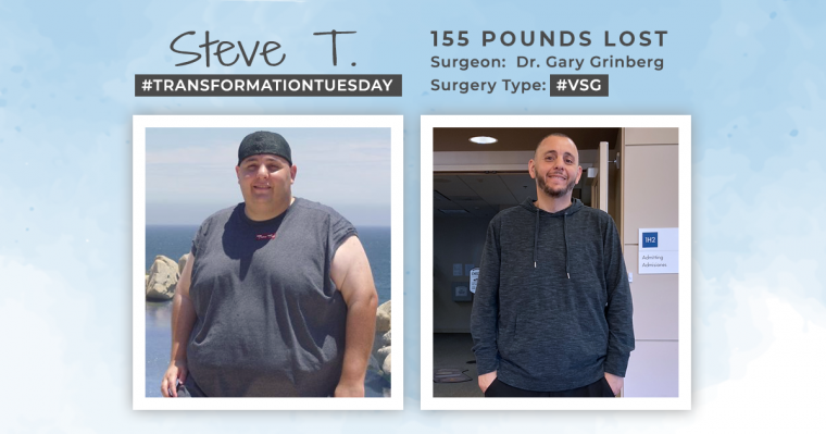 The Before and After VSG with Steve T
