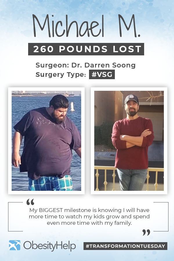 Pinterest Before & After VSG with Michael M