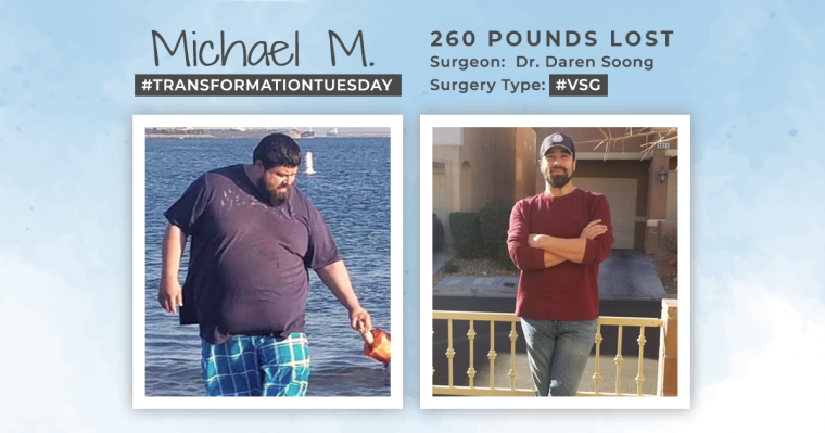 Before & After VSG with Michael M 1