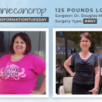 Before & After RNY with Conniecancrop, down 125 pounds!