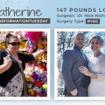 Before & After VSG with Katherine, down 147 pounds!