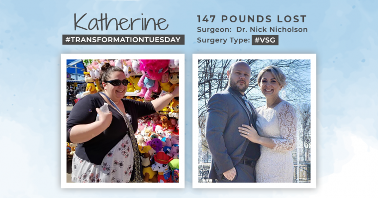 NEW Before & After VSG with Katherine