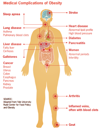 obesity health risks and medical conditions
